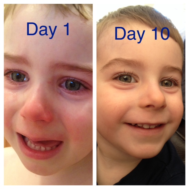 tapering off steroid eye drops