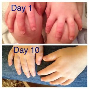 dr aron hands