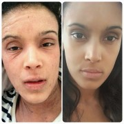 Before and after pic of topical steroid withdrawal